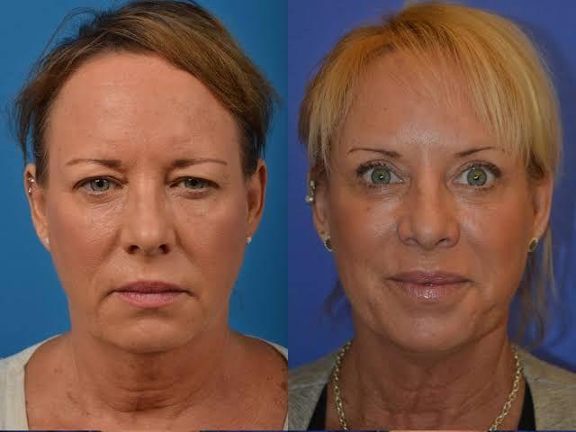 Ameliyatsız Göz Kapağı Estetiği (Öncesi - Sonrası)
